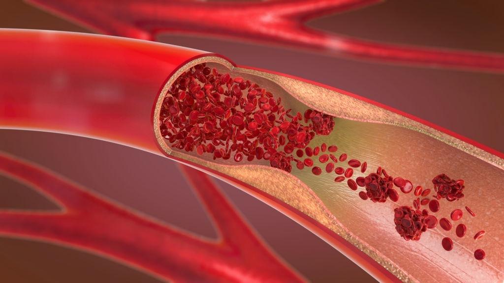 Imagem Cirurgia Vascular